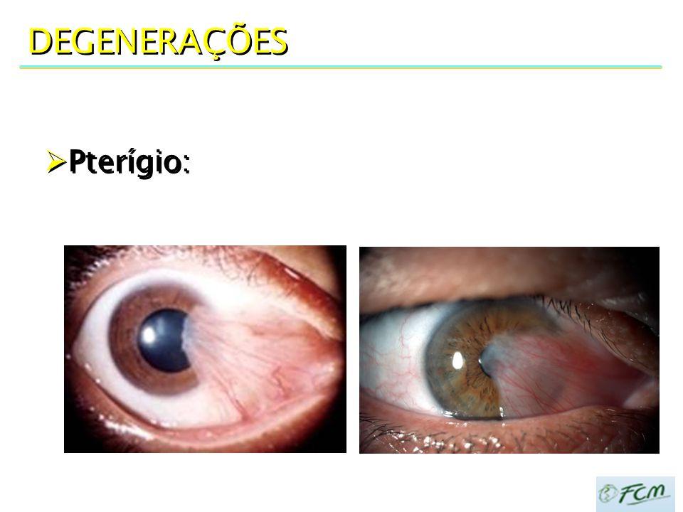 DEGENERAÇÕES  Pterígio: