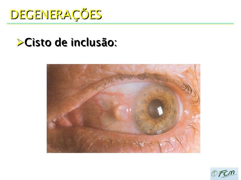 DEGENERAÇÕES  Cisto de inclusão: