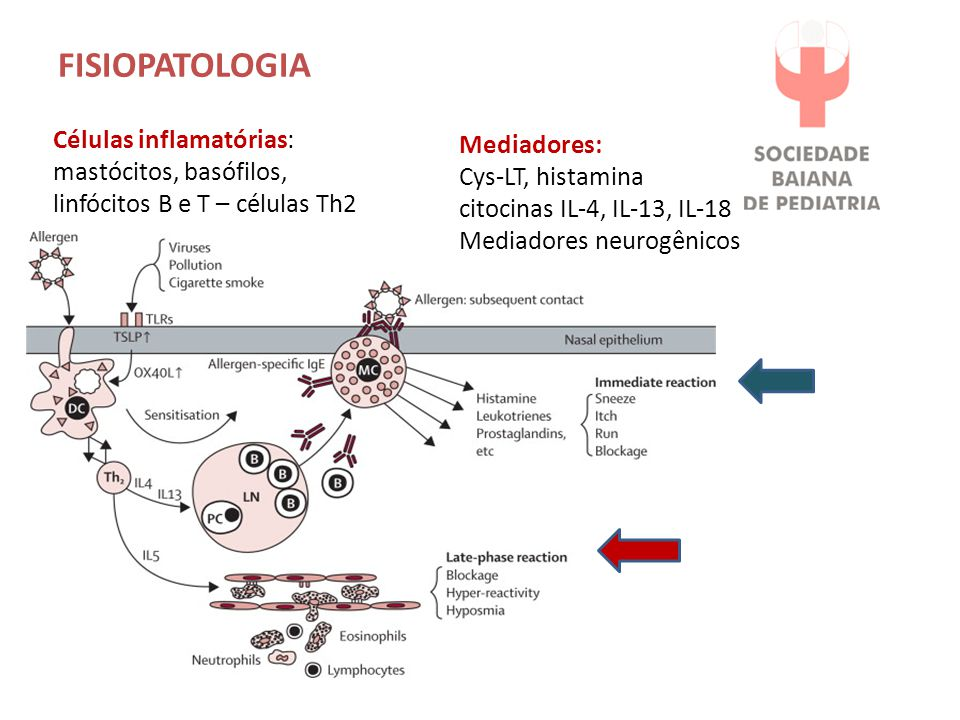 FISIOPATOLOGIA Células inflamatórias: mastócitos, basófilos, linfócitos B e T – células Th2 Mediadores: Cys-LT, histamina citocinas IL-4, IL-13, IL-18 Mediadores neurogênicos