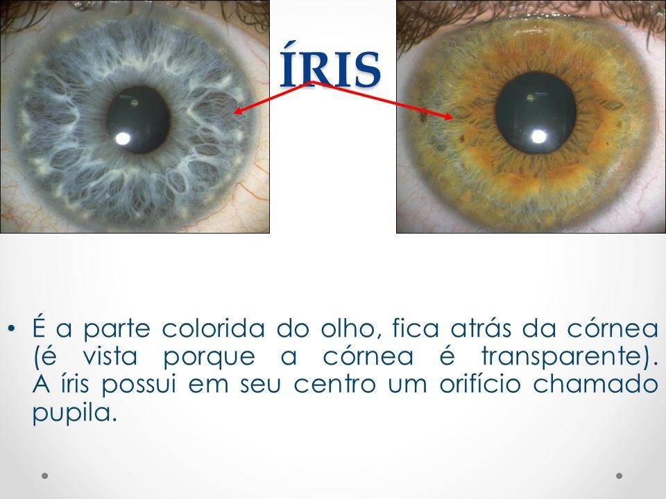 ÍRIS • É a parte colorida do olho, fica atrás da córnea (é vista porque a córnea é transparente). A íris possui em seu centro um orifício chamado pupi