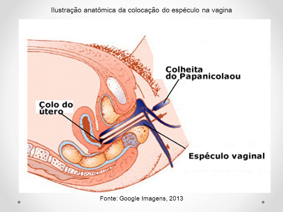 Ilustração anatômica da colocação do espéculo na vagina Fonte: Google Imagens, 2013