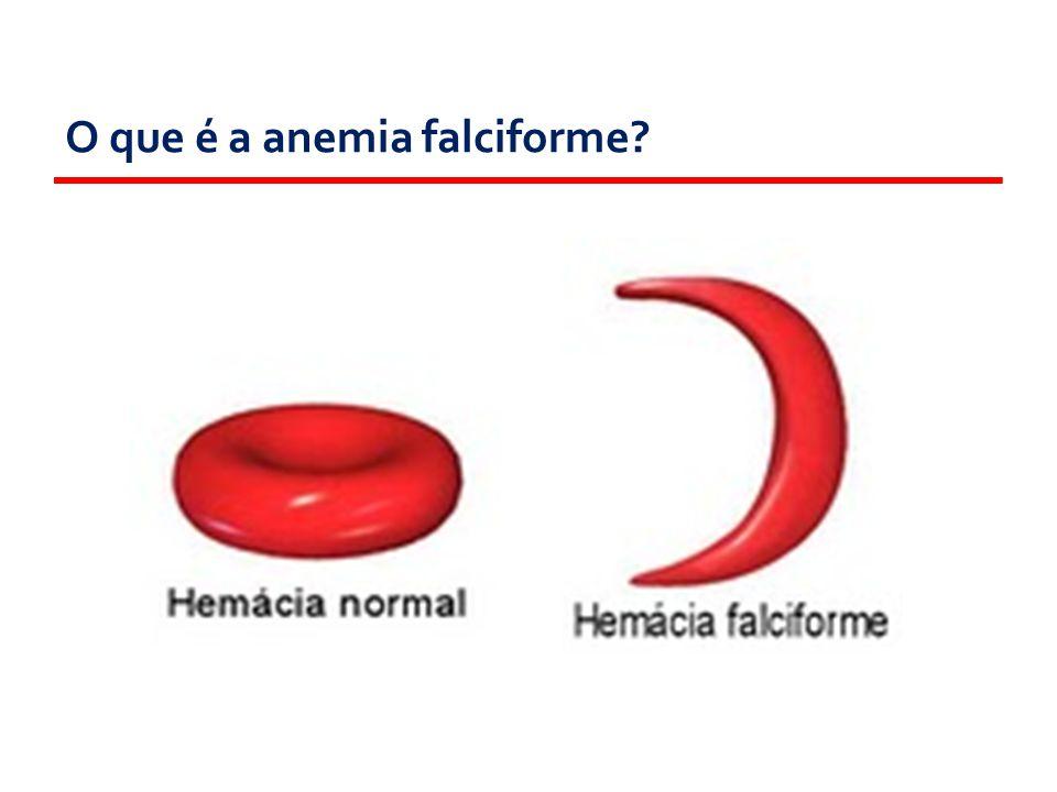 Como ela se transmite? LEGENDA: AA - Sem alteração. AS- Traço falciforme. SS- Anemia falciforme.