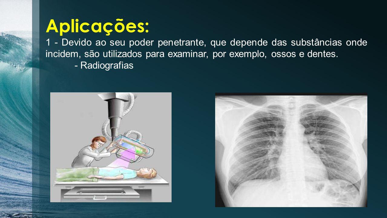 Os raios X foram descobertos pelo físico alemão William Roentgen (1845- 1923) em 1895.