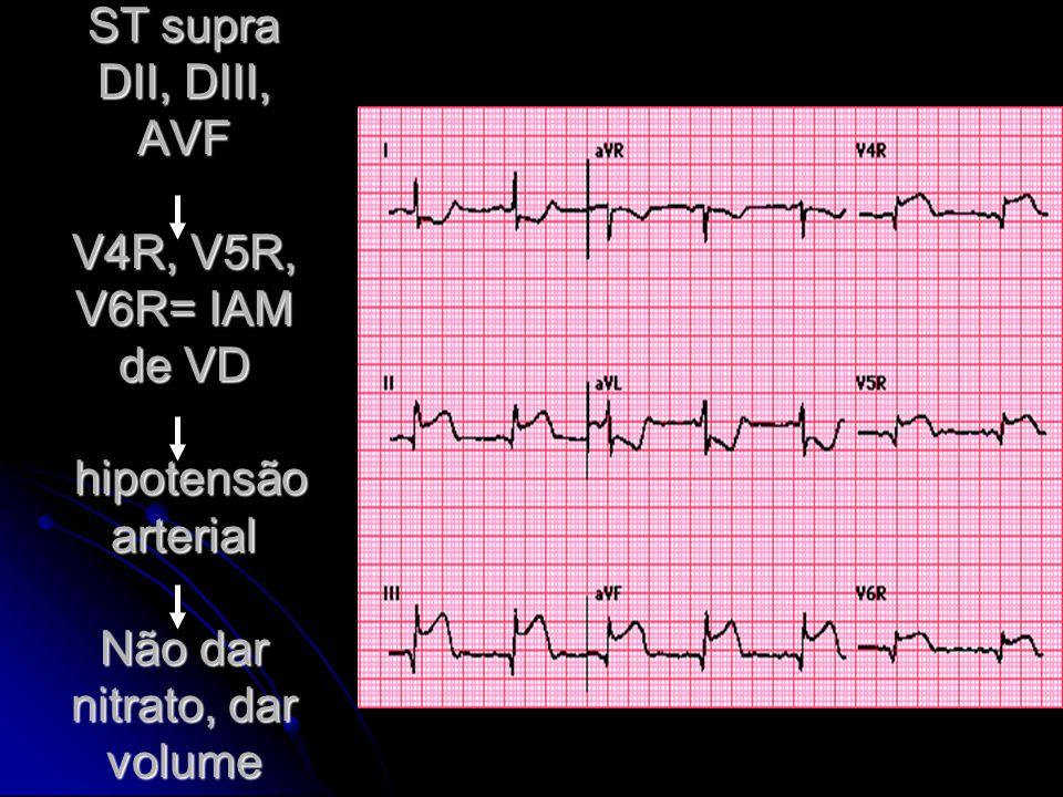 ST supra DII, DIII, AVF V4R, V5R, V6R= IAM de VD hipotensão arterial Não dar nitrato, dar volume