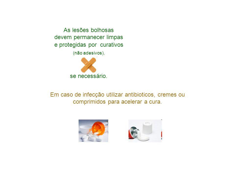 As lesões bolhosas devem permanecer limpas e protegidas por curativos (não adesivos), se necessário. Em caso de infecção utilizar antibioticos, cremes