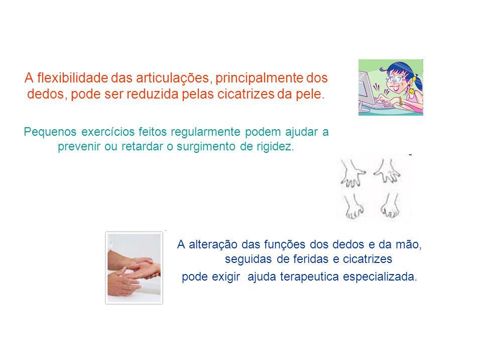 A flexibilidade das articulações, principalmente dos dedos, pode ser reduzida pelas cicatrizes da pele. Pequenos exercícios feitos regularmente podem
