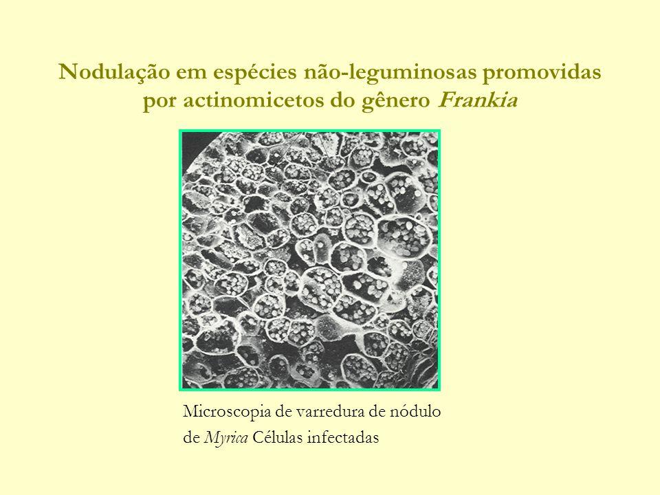 Nodulação em espécies não-leguminosas promovidas por actinomicetos do gênero Frankia Microscopia de varredura de nódulo de Myrica Células infectadas