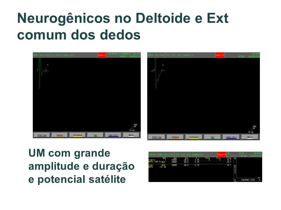 Neurogênicos no Deltoide e Ext comum dos dedos UM com grande amplitude e duração e potencial satélite