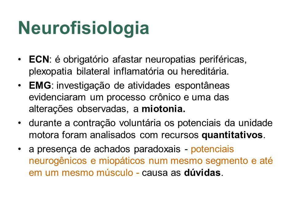 Neurofisiologia ECN: é obrigatório afastar neuropatias periféricas, plexopatia bilateral inflamatória ou hereditária. EMG: investigação de atividades