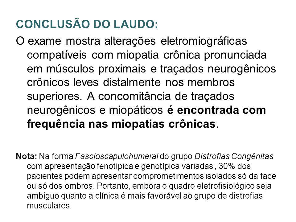 CONCLUSÃO DO LAUDO: O exame mostra alterações eletromiográficas compatíveis com miopatia crônica pronunciada em músculos proximais e traçados neurogên