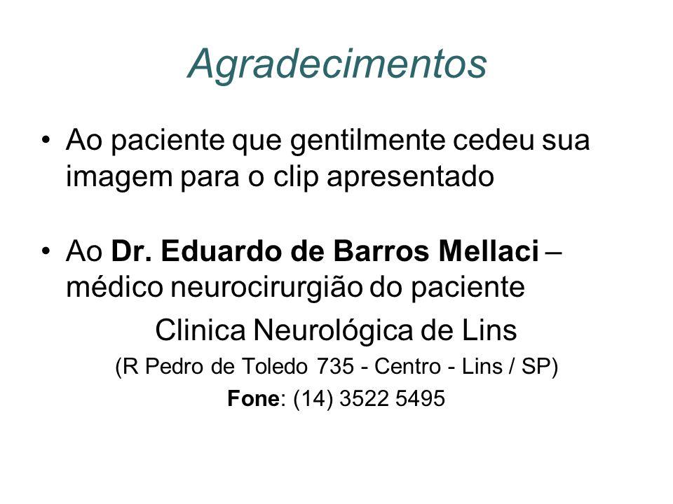 Agradecimentos Ao paciente que gentilmente cedeu sua imagem para o clip apresentado Ao Dr. Eduardo de Barros Mellaci – médico neurocirurgião do pacien