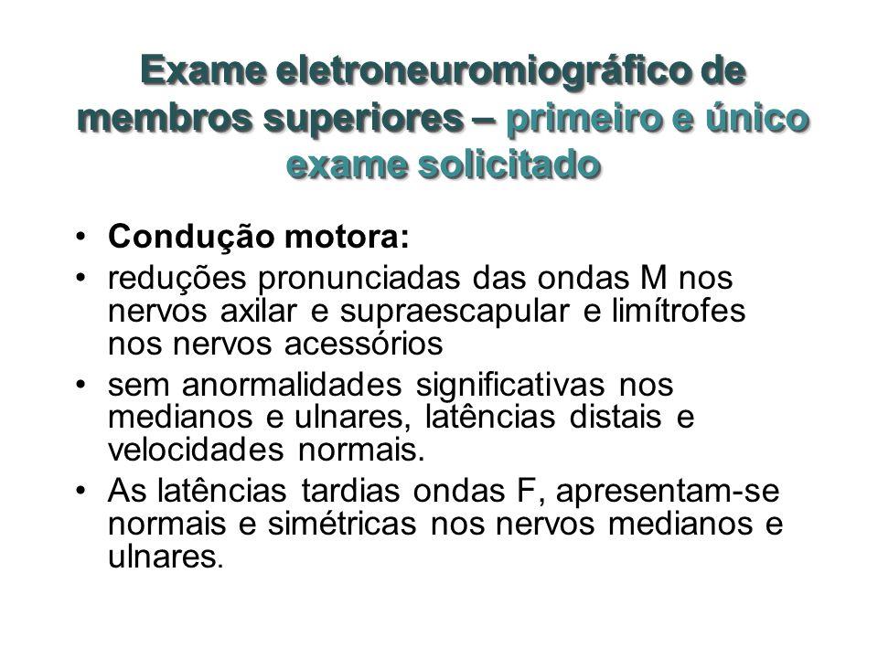 Exame eletroneuromiográfico de membros superiores – primeiro e único exame solicitado Condução motora: reduções pronunciadas das ondas M nos nervos ax