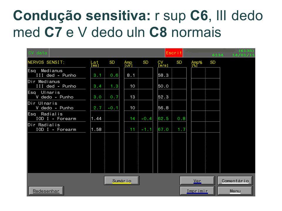 Condução sensitiva: r sup C6, III dedo med C7 e V dedo uln C8 normais