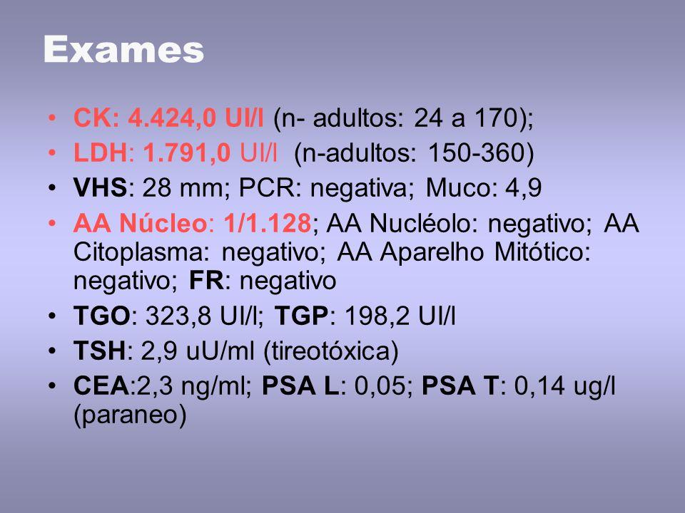 Exames CK: 4.424,0 UI/l (n- adultos: 24 a 170); LDH: 1.791,0 UI/l (n-adultos: 150-360) VHS: 28 mm; PCR: negativa; Muco: 4,9 AA Núcleo: 1/1.128; AA Nucléolo: negativo; AA Citoplasma: negativo; AA Aparelho Mitótico: negativo; FR: negativo TGO: 323,8 UI/l; TGP: 198,2 UI/l TSH: 2,9 uU/ml (tireotóxica) CEA:2,3 ng/ml; PSA L: 0,05; PSA T: 0,14 ug/l (paraneo)