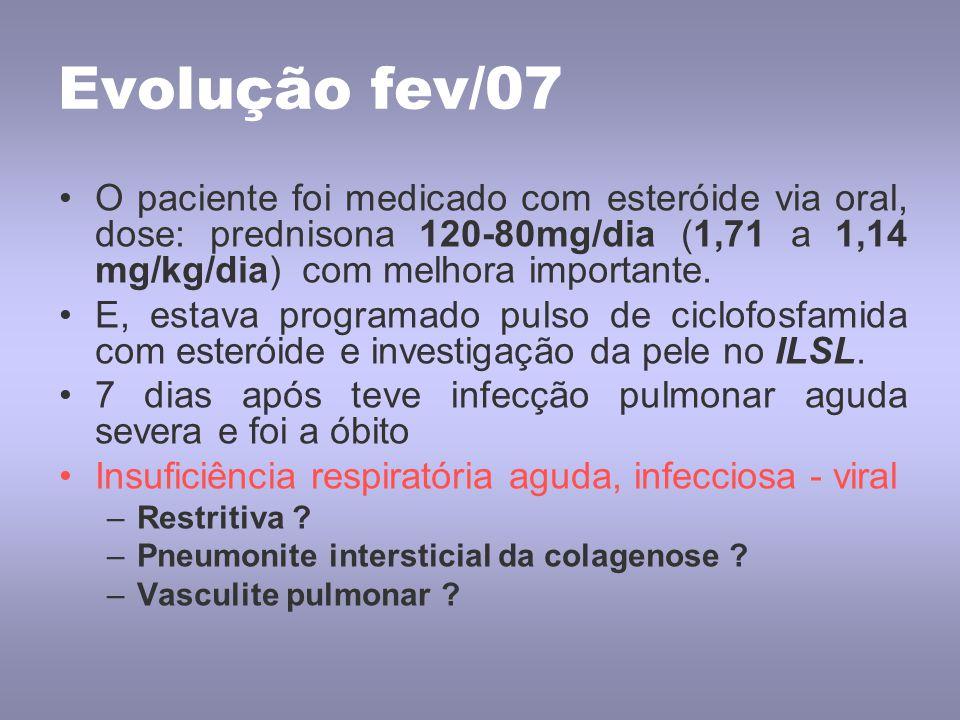 Evolução fev/07 O paciente foi medicado com esteróide via oral, dose: prednisona 120-80mg/dia (1,71 a 1,14 mg/kg/dia) com melhora importante.