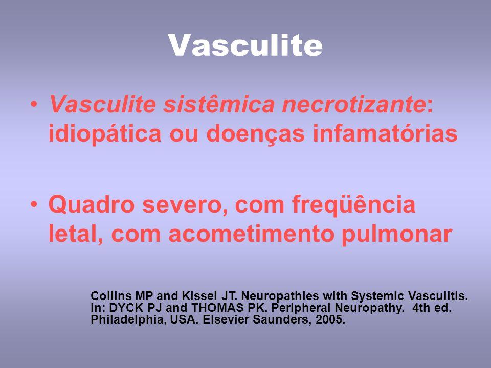 Vasculite Vasculite sistêmica necrotizante: idiopática ou doenças infamatórias Quadro severo, com freqüência letal, com acometimento pulmonar Collins MP and Kissel JT.