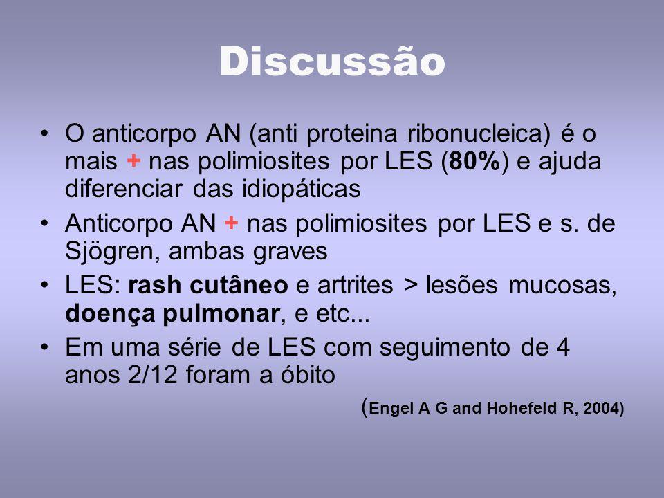 Discussão O anticorpo AN (anti proteina ribonucleica) é o mais + nas polimiosites por LES (80%) e ajuda diferenciar das idiopáticas Anticorpo AN + nas polimiosites por LES e s.