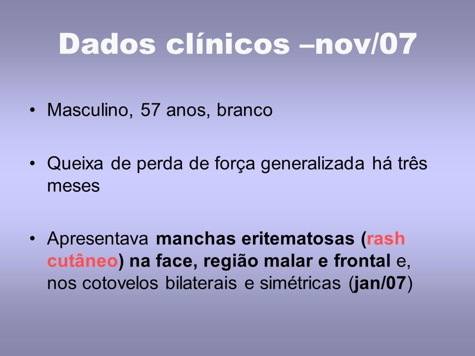 Dados clínicos –nov/07 Masculino, 57 anos, branco Queixa de perda de força generalizada há três meses Apresentava manchas eritematosas (rash cutâneo)