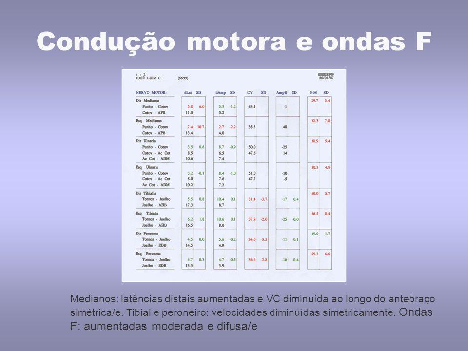 Condução motora e ondas F Medianos: latências distais aumentadas e VC diminuída ao longo do antebraço simétrica/e. Tibial e peroneiro: velocidades dim