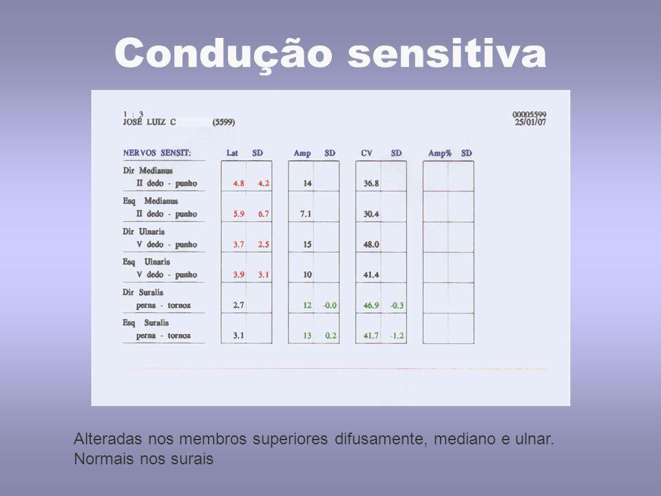 Condução sensitiva Alteradas nos membros superiores difusamente, mediano e ulnar. Normais nos surais