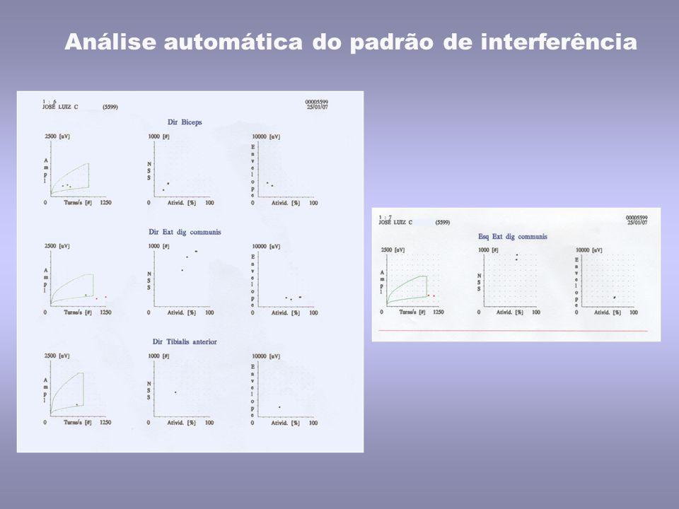 Análise automática do padrão de interferência