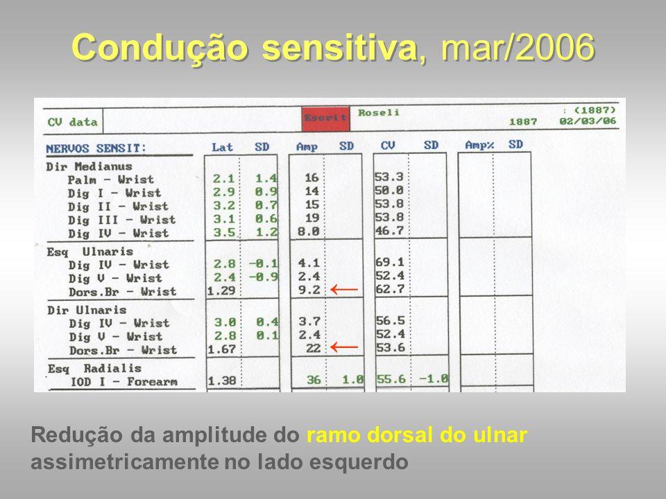 Condução sensitiva, mar/2006 ← ← Redução da amplitude do ramo dorsal do ulnar assimetricamente no lado esquerdo