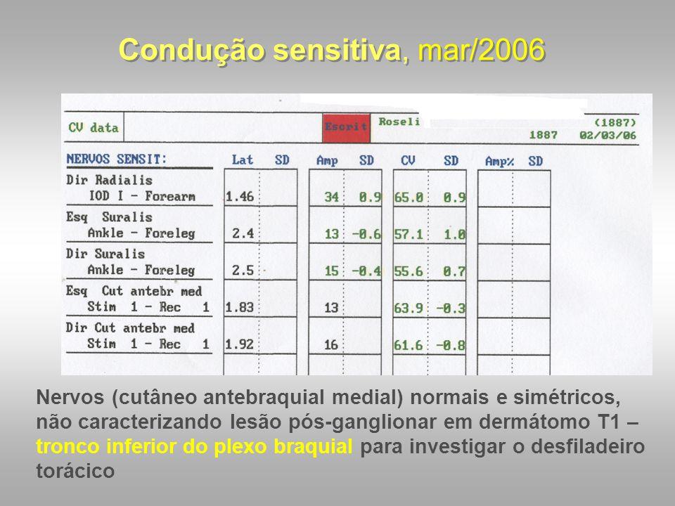 Condução sensitiva, mar/2006 Nervos (cutâneo antebraquial medial) normais e simétricos, não caracterizando lesão pós-ganglionar em dermátomo T1 – tron