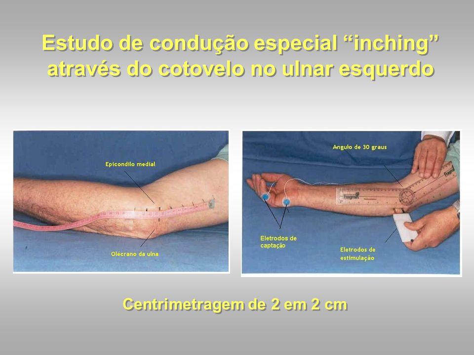"""Estudo de condução especial """"inching"""" através do cotovelo no ulnar esquerdo Centrimetragem de 2 em 2 cm"""