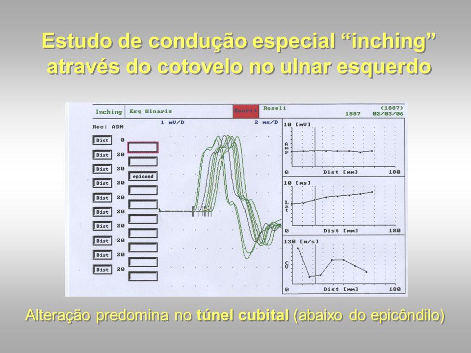 """Estudo de condução especial """"inching"""" através do cotovelo no ulnar esquerdo Alteração predomina no túnel cubital (abaixo do epicôndilo)"""