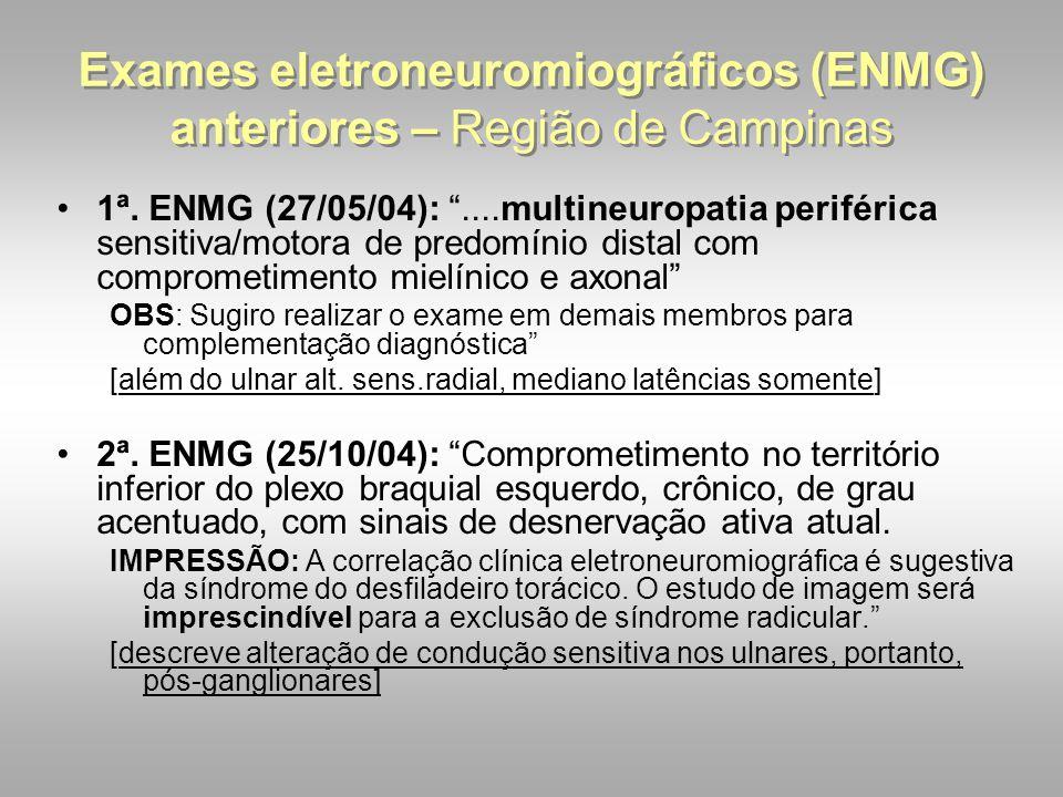"""Exames eletroneuromiográficos (ENMG) anteriores – Região de Campinas 1ª. ENMG (27/05/04): """"....multineuropatia periférica sensitiva/motora de predomín"""