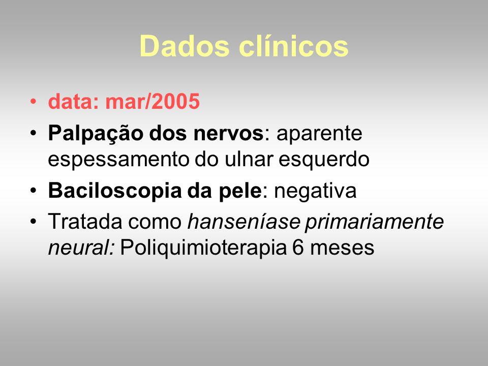 data: mar/2005 Palpação dos nervos: aparente espessamento do ulnar esquerdo Baciloscopia da pele: negativa Tratada como hanseníase primariamente neura