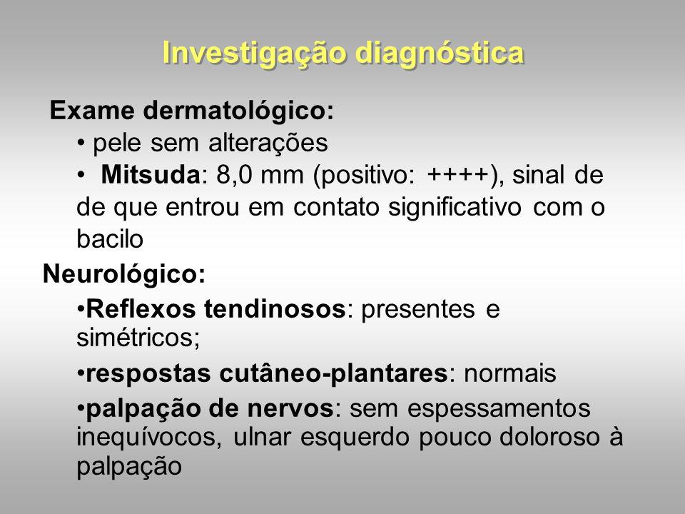 Investigação diagnóstica Exame dermatológico: pele sem alterações Mitsuda: 8,0 mm (positivo: ++++), sinal de de que entrou em contato significativo co
