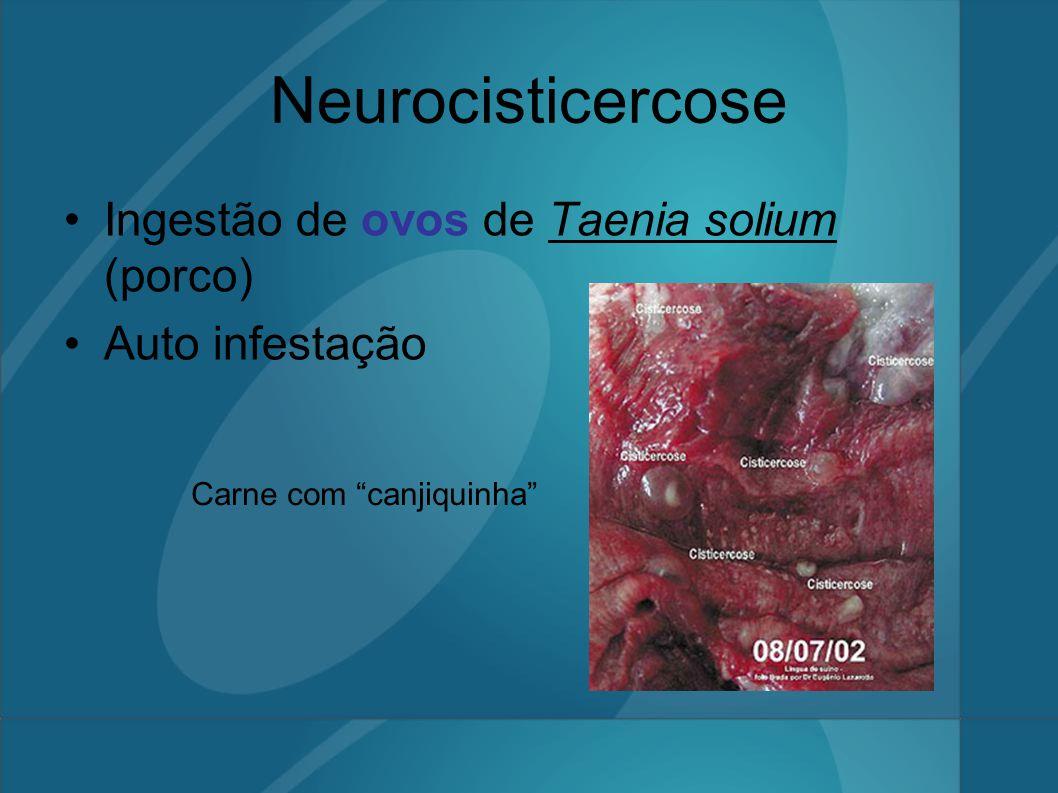 """Neurocisticercose Ingestão de ovos de Taenia solium (porco) Auto infestação Carne com """"canjiquinha"""""""