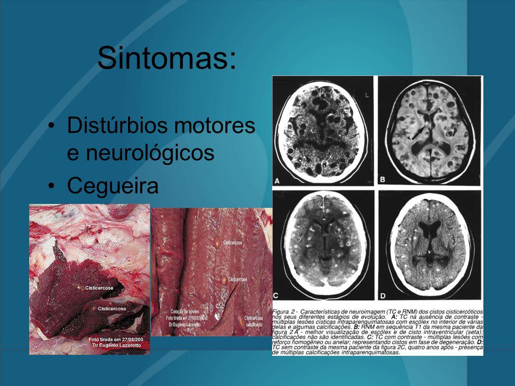 Sintomas: Distúrbios motores e neurológicos Cegueira Convulsões