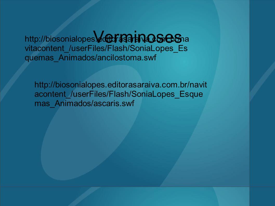Verminoses http://biosonialopes.editorasaraiva.com.br/na vitacontent_/userFiles/Flash/SoniaLopes_Es quemas_Animados/ancilostoma.swf http://biosonialopes.editorasaraiva.com.br/navit acontent_/userFiles/Flash/SoniaLopes_Esque mas_Animados/ascaris.swf