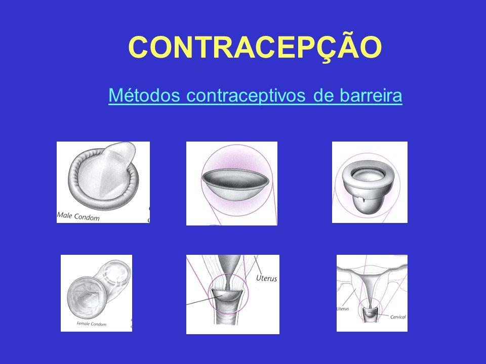 CONTRACEPÇÃO Métodos contraceptivos de barreira