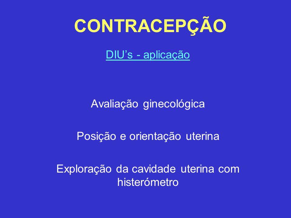 CONTRACEPÇÃO DIU's - aplicação Avaliação ginecológica Posição e orientação uterina Exploração da cavidade uterina com histerómetro
