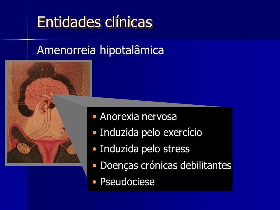 Anorexia nervosa Entidades clínicas Amenorreia hipotalâmica Induzida pelo exercício Induzida pelo stress Doenças crónicas debilitantes Pseudociese