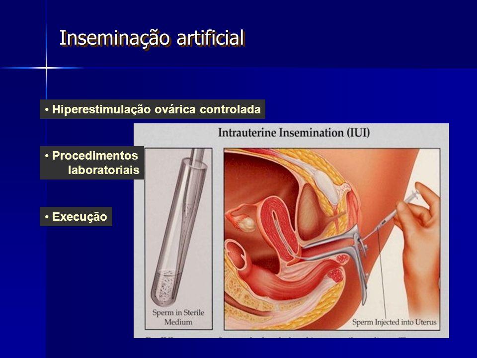 Hiperestimulação ovárica controlada Execução Procedimentos laboratoriais Inseminação artificial