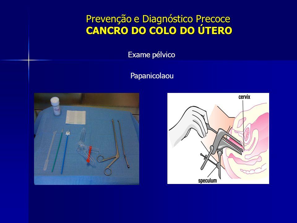Prevenção e Diagnóstico Precoce CANCRO DO COLO DO ÚTERO Exame pélvico Papanicolaou