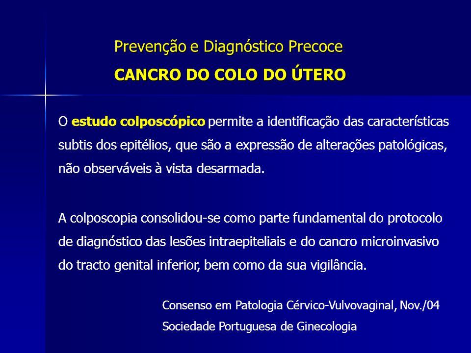 Prevenção e Diagnóstico Precoce CANCRO DO COLO DO ÚTERO O estudo colposcópico permite a identificação das características subtis dos epitélios, que sã