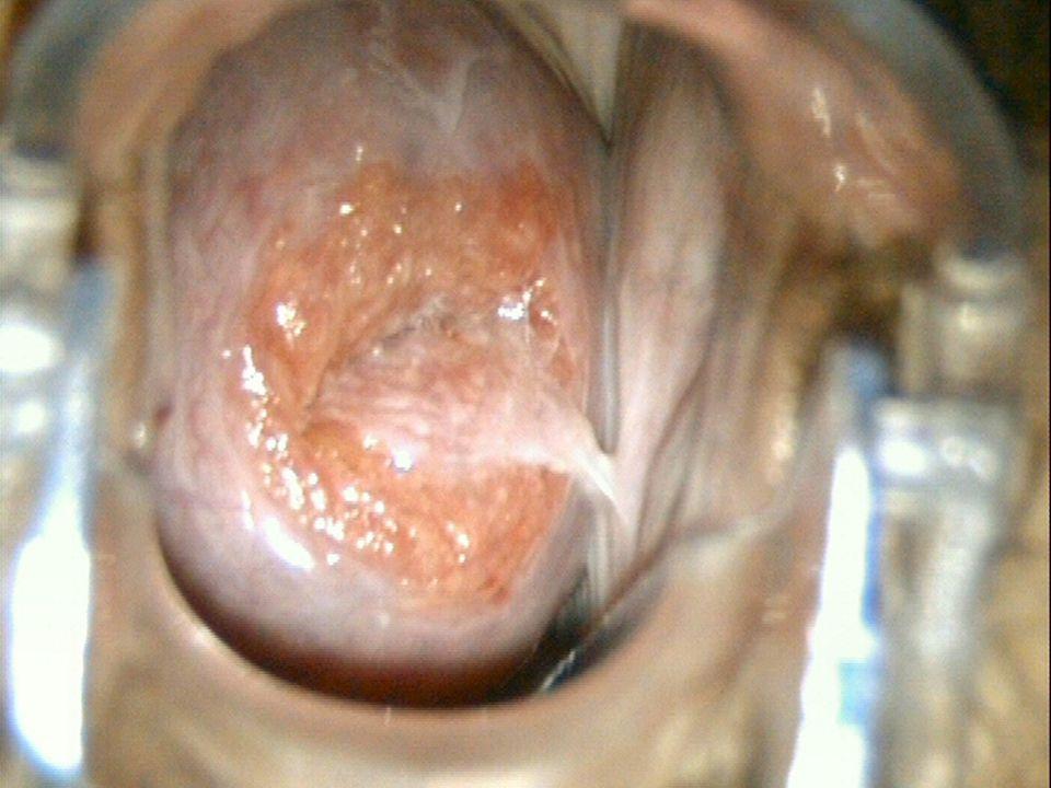 Lesões intraepiteliais Modalidades terapêuticas Destrutivas Excisionais