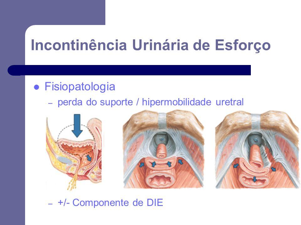 Incontinência Urinária de Esforço Fisiopatologia – perda do suporte / hipermobilidade uretral – +/- Componente de DIE