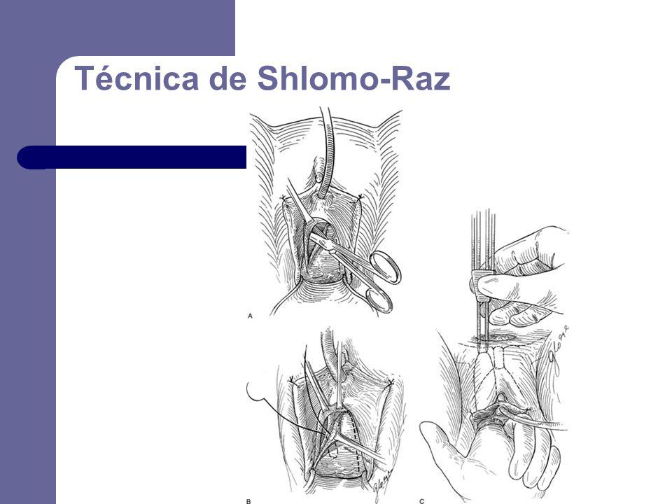 Técnica de Shlomo-Raz