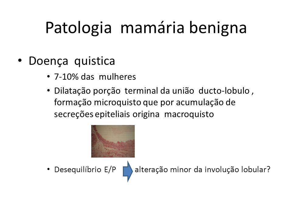 Patologia mamária benigna Doença quistica 7-10% das mulheres Dilatação porção terminal da união ducto-lobulo, formação microquisto que por acumulação