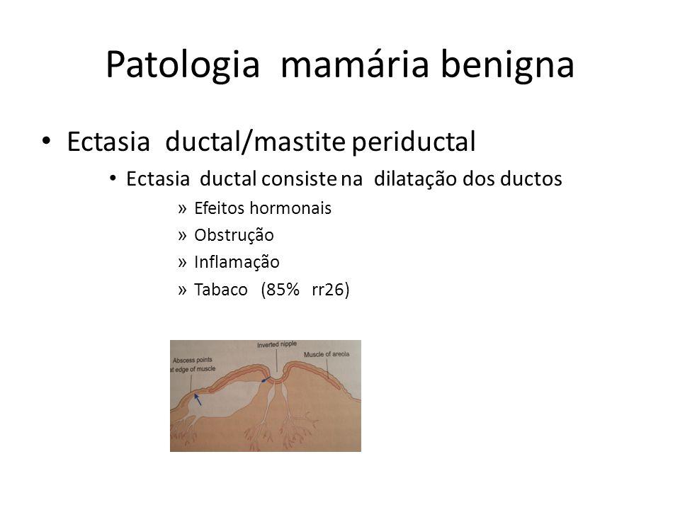 Patologia mamária benigna Ectasia ductal/mastite periductal Ectasia ductal consiste na dilatação dos ductos » Efeitos hormonais » Obstrução » Inflamaç