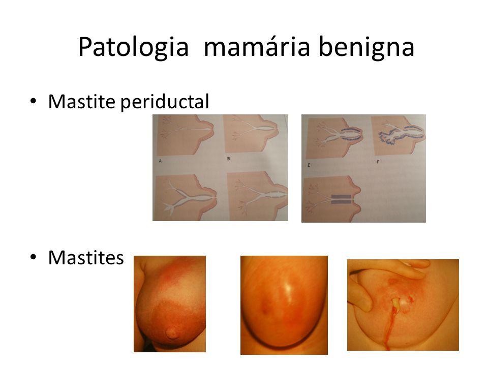 Patologia mamária benigna Mastite periductal Mastites