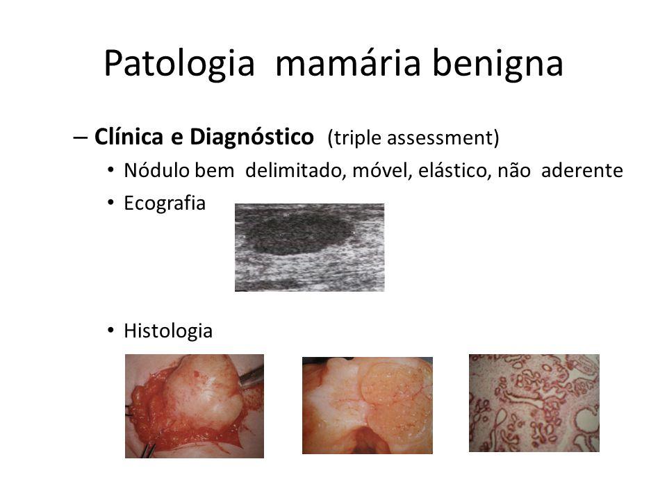 Patologia mamária benigna – Clínica e Diagnóstico (triple assessment) Nódulo bem delimitado, móvel, elástico, não aderente Ecografia Histologia
