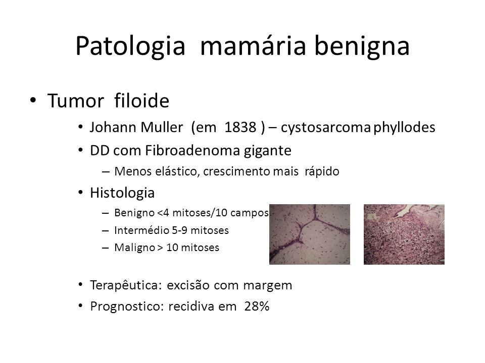Patologia mamária benigna Tumor filoide Johann Muller (em 1838 ) – cystosarcoma phyllodes DD com Fibroadenoma gigante – Menos elástico, crescimento ma