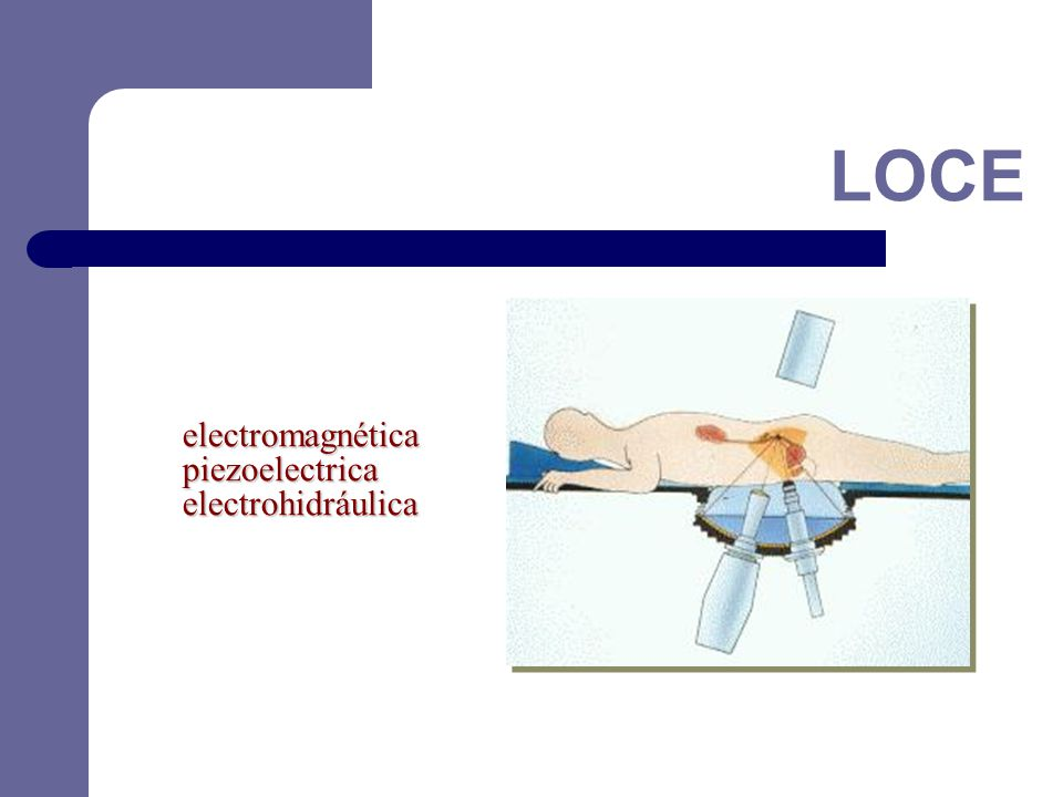 electromagnéticapiezoelectricaelectrohidráulica LOCE